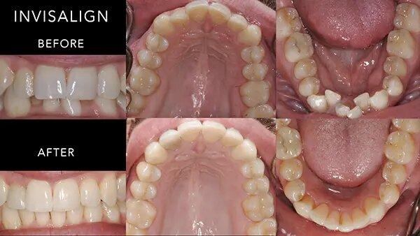 tomasik family dental invisalign