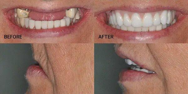 tomasik family dental smile restoration