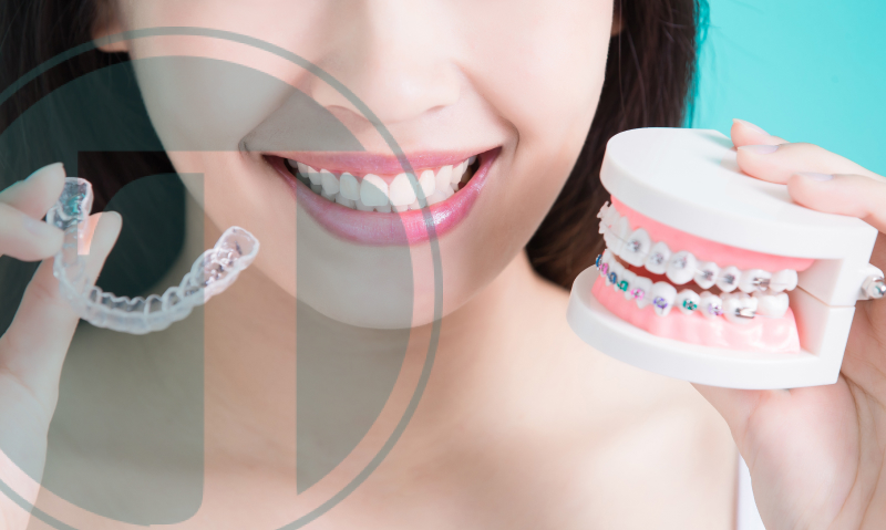 A Beautiful Smile is a Healthy Smile: Comparing Invisalign and Braces